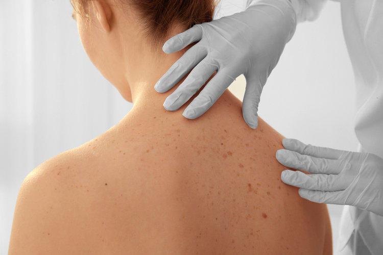 Акне на спине: 5 причин несовершенств и способы их устранения