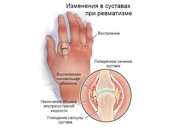 15319 Что такое ревматизм суставов симптомы и лечение?